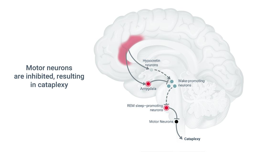 3 Pathophysiology of Cataplexy